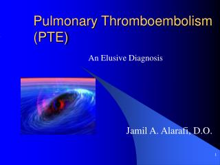 Pulmonary Thromboembolism PTE