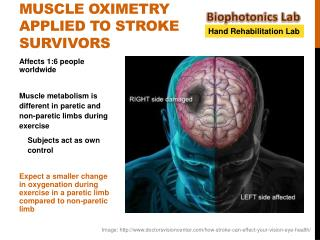 Muscle oximetry applied to stroke survivors