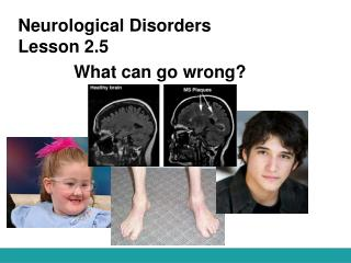 Neurological Disorders Lesson 2.5