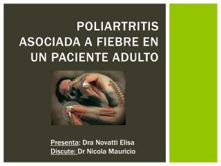 Poliartritis asociada a fiebre en un paciente adulto