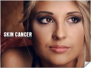 Melanoma Excision & Skin Cancer Treatment - Skin Cancer Los