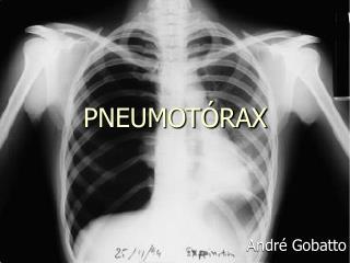 PNEUMOT RAX