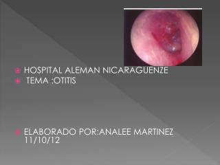 HOSPITAL ALEMAN NICARAGUENZE  TEMA :OTITIS ELABORADO POR:ANALEE MARTINEZ     11/10/12