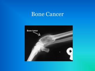 Bone Cancer