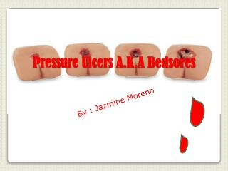 Pressure Ulcers A.K.A Bedsores