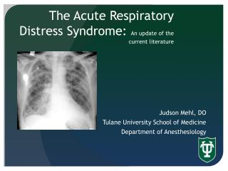 The Acute Respiratory Distress Syndrome:  An update of the current literature