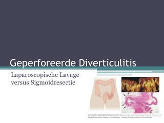 Geperforeerde Diverticulitis