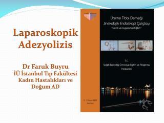 Laparoskopik Adezyolizis Dr Faruk Buyru İÜ İstanbul Tıp  Fakültesi Kadın Hastalıkları ve Doğum AD