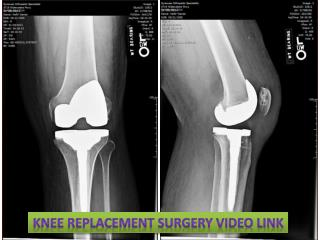 Knee Replacement Surgery Video Link