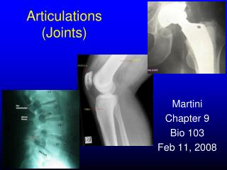 Articulations (Joints)