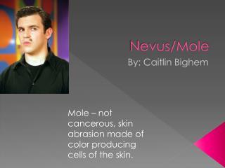 Nevus/Mole