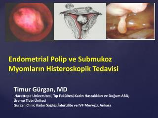 Endometrial  Polip ve  Submukoz Myomların Histeroskopik  Tedavisi