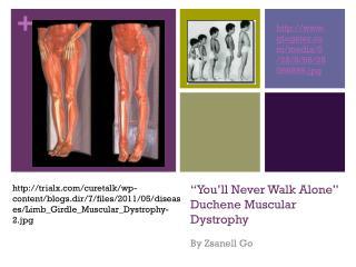 """You'll Never Walk Alone"" Duchene Muscular  Dystrophy"