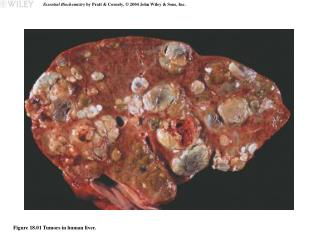 Figure 18.01 Tumors in human liver.