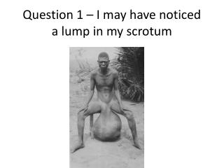 Question 1 – I may have noticed a lump in my scrotum