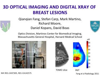 3D OPTICAL IMAGING AND DIGITAL XRAY OF  BREAST  LESIONS