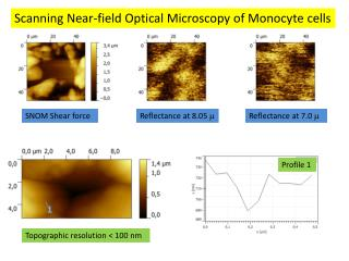 Scanning  Near-field Optical Microscopy of Monocyte cells