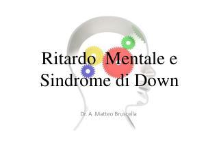 Ritardo  Mentale e  Sindrome di Down