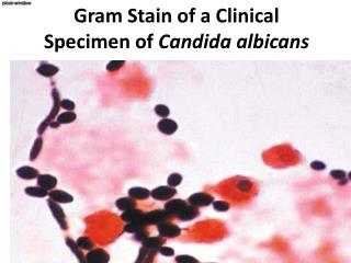 Gram Stain of a Clinical Specimen of  Candida  albicans
