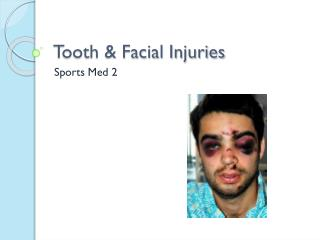 Tooth & Facial Injuries