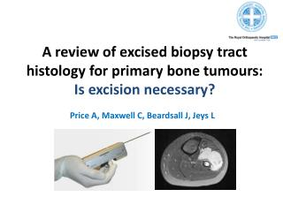 A review of excised biopsy tract histology for primary bone tumours:  Is excision necessary?
