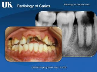 Radiology of Caries