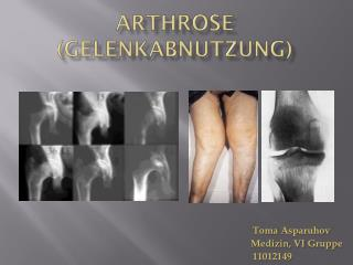 Arthrose  ( Gelenkabnutzung )