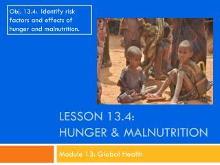 Lesson  13.4: Hunger & Malnutrition