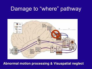 """Damage to """"where"""" pathway"""