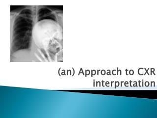(an) Approach to CXR interpretation