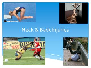 Neck & Back injuries