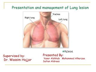 Presentation and management of Lung lesion