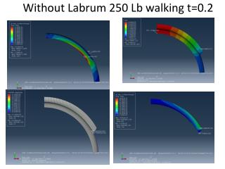 Without Labrum  250  Lb walking t=0.2