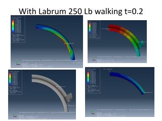 With Labrum  250  Lb walking  t=0.2