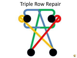Triple Row Repair