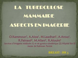 LA   TUBERCULOSE   MAMMAIRE ASPECTS EN IMAGERIE