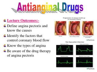 Lecture Outcomes:- Define angina pectoris and know the causes