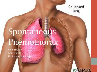 Spontaneous  Pnemothorax