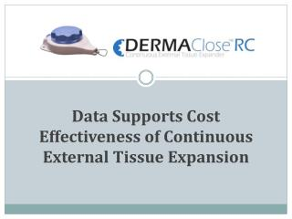 Data Supports Cost Effectiveness of Continuous External Tissue Expansion