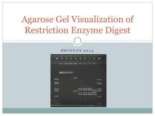 Agarose Gel Visualization of Restriction Enzyme Digest