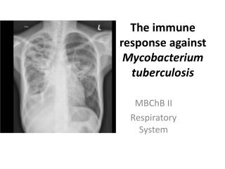The immune response against  Mycobacterium tuberculosis