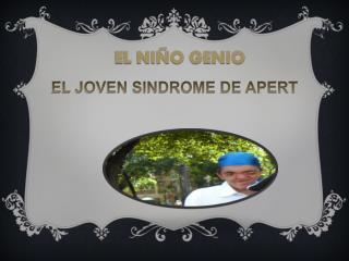 EL  JOVEN SINDROME DE APERT