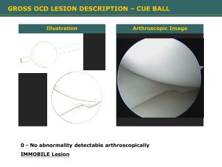 Arthroscopic Image