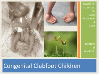 Congenital Clubfoot Children