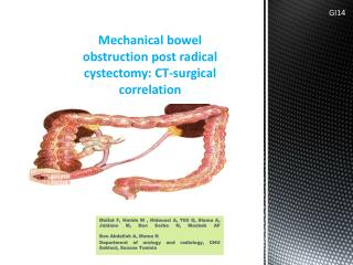 Mechanical bowel obstruction post radical cystectomy: CT-surgical correlation