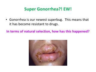 Super Gonorrhea?! EW!