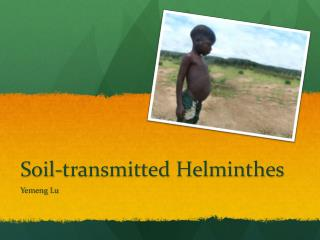 Soil-transmitted  Helminthes