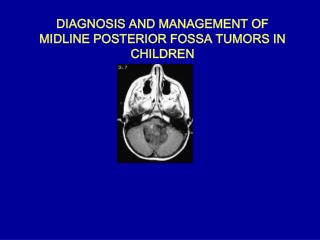 DIAGNOSIS AND MANAGEMENT OF MIDLINE POSTERIOR FOSSA TUMORS IN CHILDREN