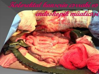 Kolorektal kanserin cərrahi və endoskopik müalicəsi