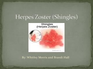 Herpes Zoster (Shingles)